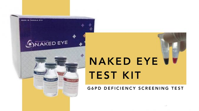 Naked EYE Test Kit – a glucose-6-phosphate dehydrogenase deficiency screening analysis